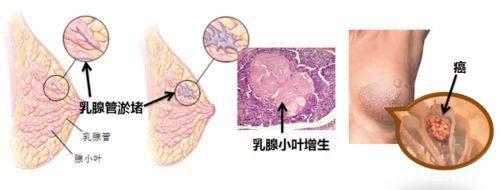 粉红5月:自然医学乳腺病学术研讨会为你的乳腺健康护航