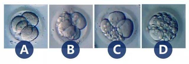鲜胚、囊胚、冻胚移植,哪个成功率最高?/